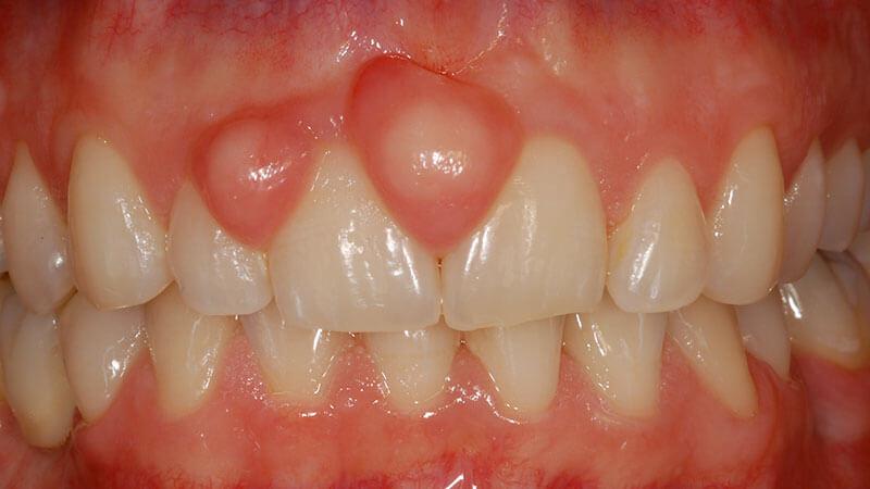 Chirurgia Orale | Studio Odontoiatrico Dr. Colombo Bolla - Dr. Brivio
