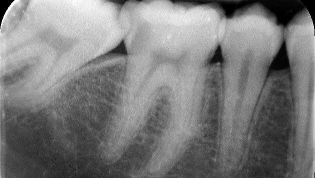 Endodonzia | Studio Odontoiatrico Dr. Colombo Bolla - Dr. Brivio