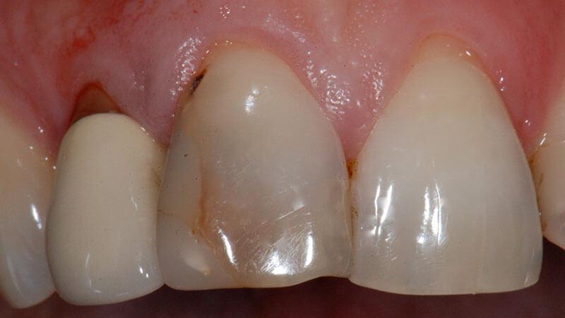Estetica e Sbiancamento   Studio Odontoiatrico Dr. Colombo Bolla - Dr. Brivio