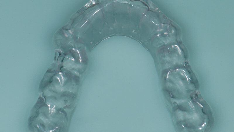 Gnatologia | Studio Odontoiatrico Dr. Colombo Bolla - Dr. Brivio