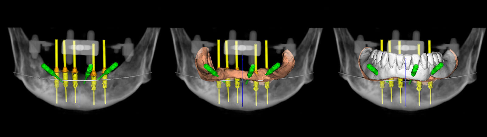 Implantologia Mini-invasiva | Studio Odontoiatrico Dr. Colombo Bolla - Dr. Brivio