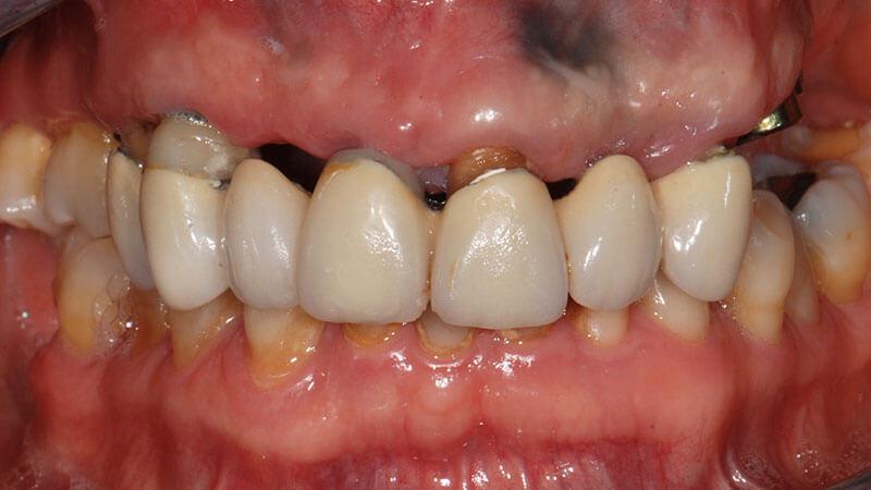 Implantologia | Studio Odontoiatrico Dr. Colombo Bolla - Dr. Brivio