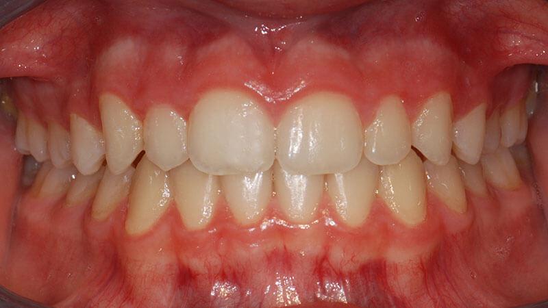 Ortodonzia Invisibile | Studio Odontoiatrico Dr. Colombo Bolla - Dr. Brivio
