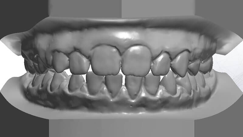 Ortodonzia | Studio Odontoiatrico Dr. Colombo Bolla - Dr. Brivio