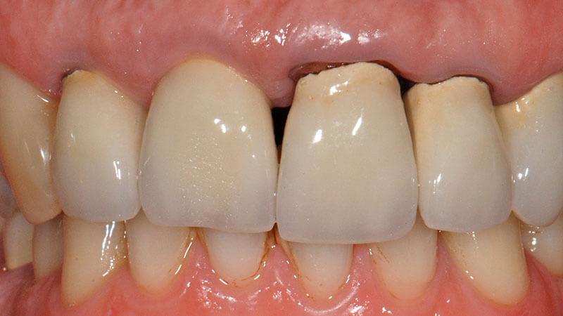 Parodontologia | Studio Odontoiatrico Dr. Colombo Bolla - Dr. Brivio