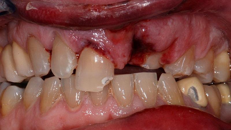 Protesi fissa | Studio Odontoiatrico Dr. Colombo Bolla - Dr. Brivio