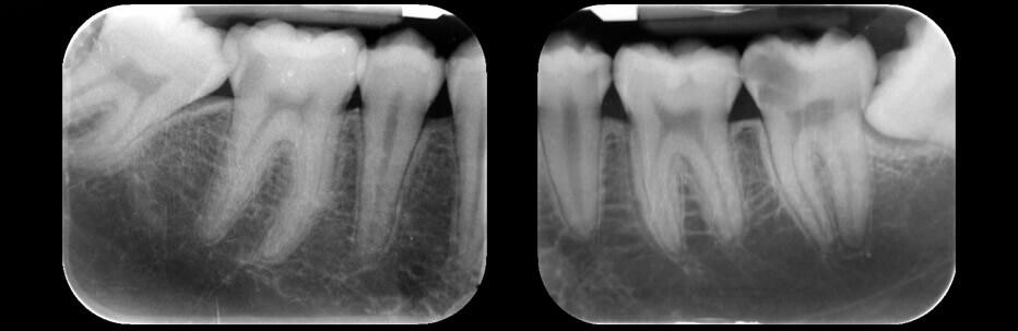 Radiologia dentale | Studio Odontoiatrico Dr. Colombo Bolla - Dr. Brivio